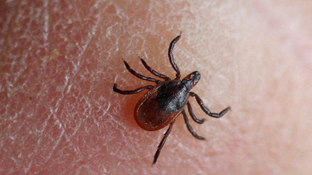 Girl wakes up paralyzed after potentially deadly tick bite, doctors say