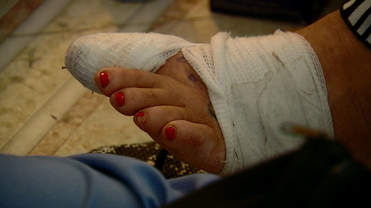 Florida woman blames nail salon for infection that led to week-long ...