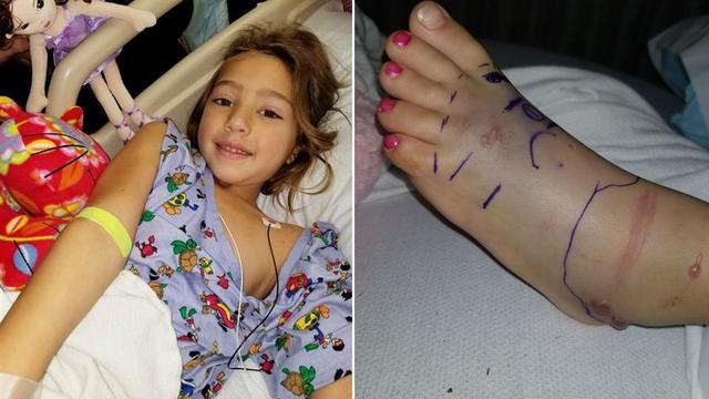 Texas 5-Year-Old Bitten by Rattlesnake Battles Toward Recovery in Hospital