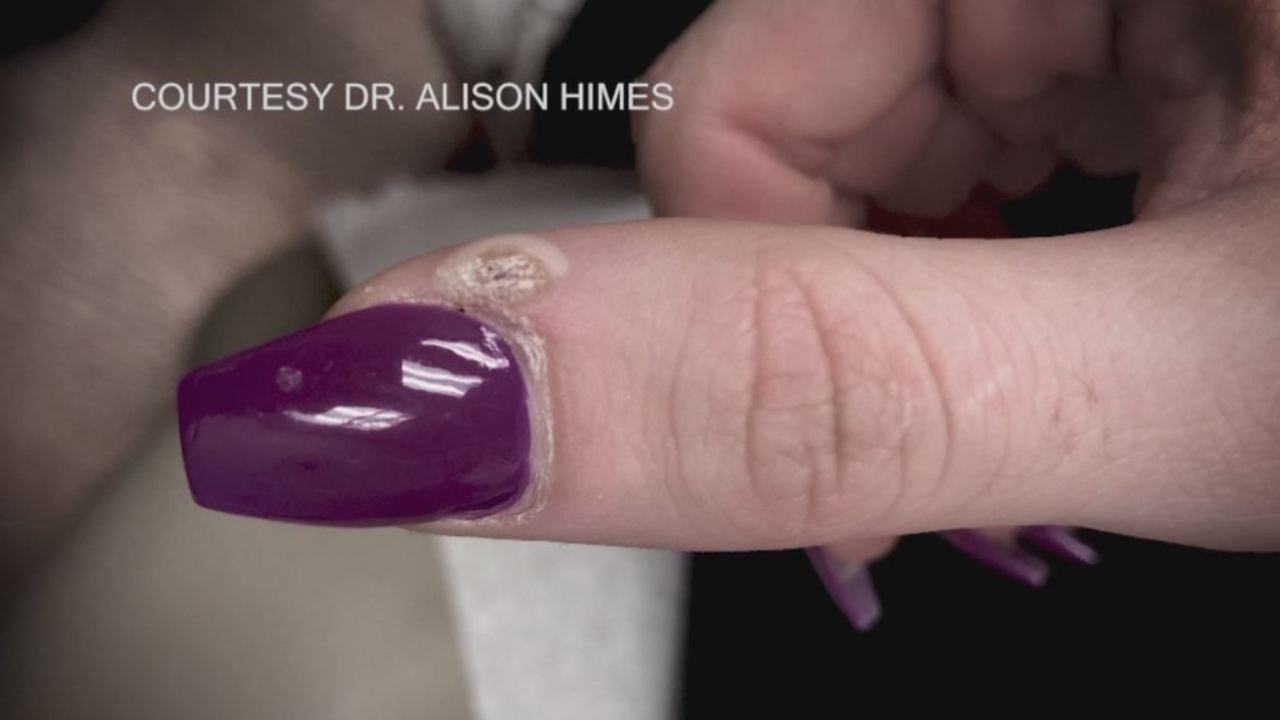Bacteria, viruses and fungus among health risks lurking at the nail ...