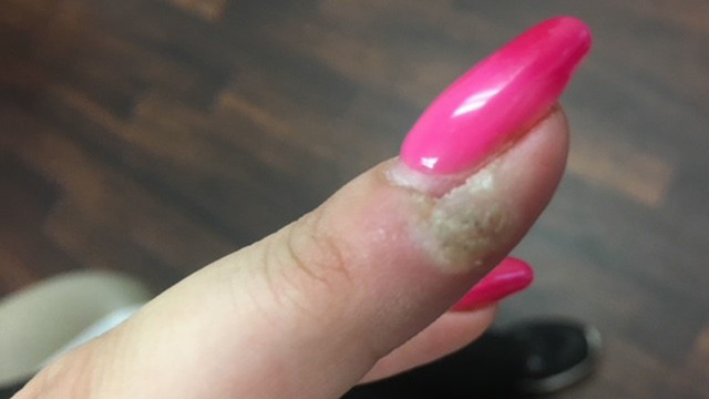 Bacteria Viruses And Fungus Among Health Risks Lurking At The Nail Salon