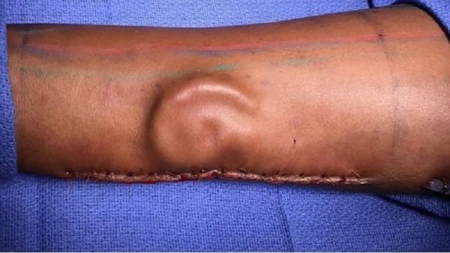Army grows ear on soldier's arm for transplant