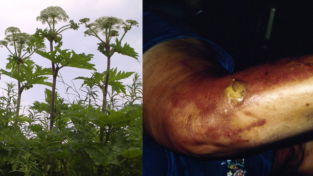 Invasive plant can cause severe burns, blindness